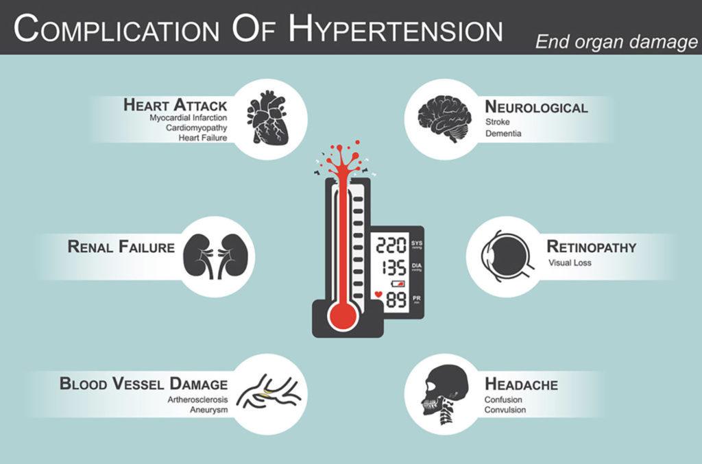 La hipertensión es una enfermedad seria que puede tener complicaciones mortales