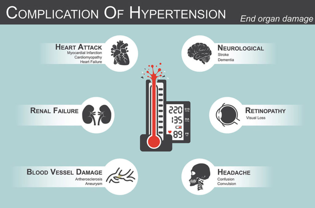 Hypertension is a serious condition that can have fatal complications