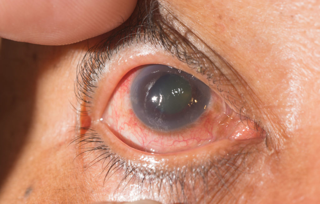 Cannabis and cannabinoids in the treatment of glaucoma