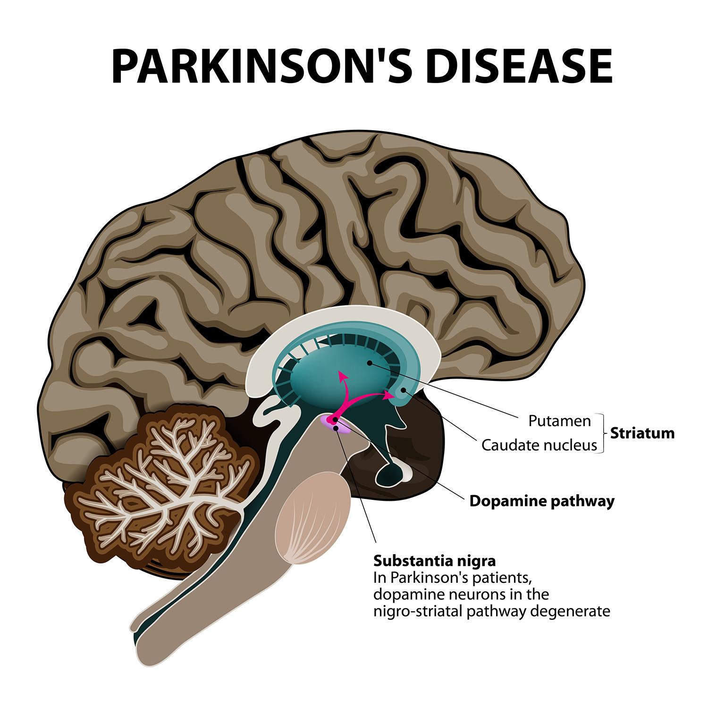 Cannabis and Parkinson\'s disease