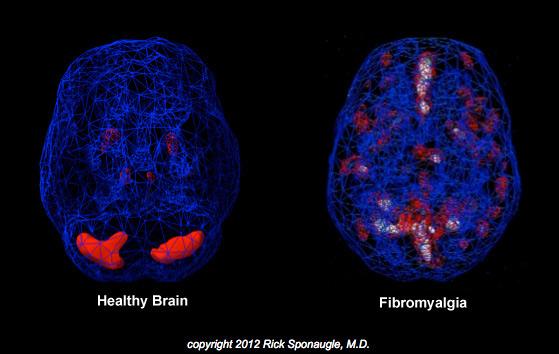 Un cerebro sano en comparación con el cerebro de un paciente que sufre de fibromialgia