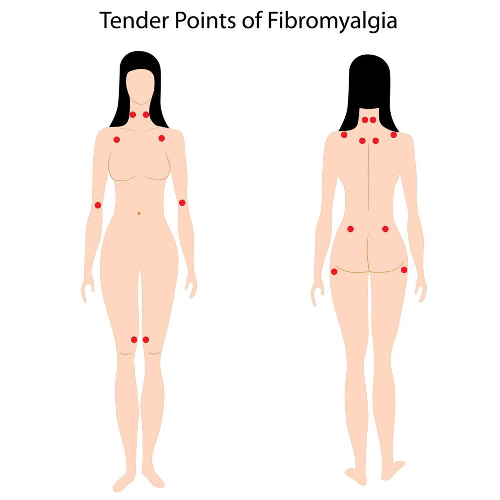 Empfindliche Punkte der Fibromyalgie