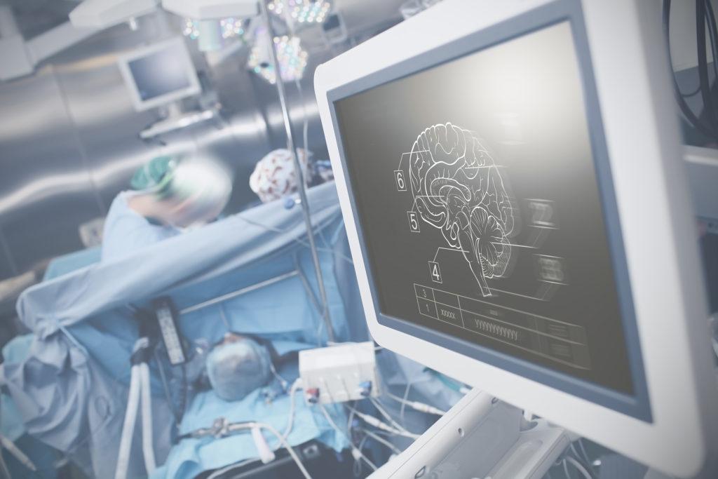 Los efectos neuroprotectores del cannabis - Sensi Seeds Blog