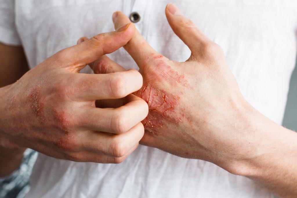 Das Ekzem ist durch trockene, raue Haut gekennzeichnet, die in schweren Fällen rissig werden, nässen und Flüssigkeit absondern kann