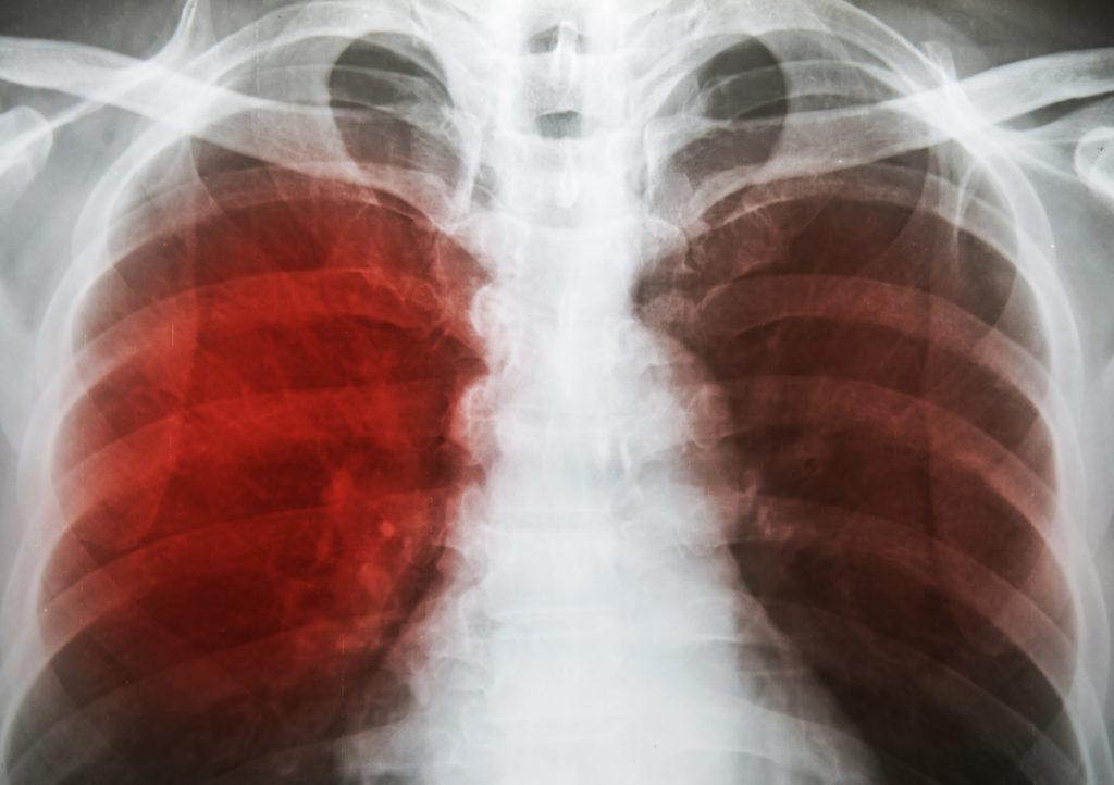 Una radiografía de los pulmones que muestra el aspecto moteado y difuso característico de la tuberculosis