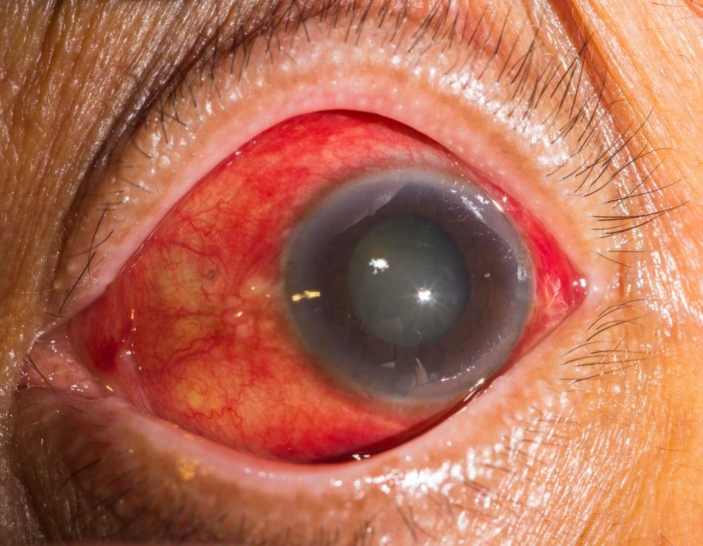 Los 4 beneficios más importantes del cannabis para el glaucoma