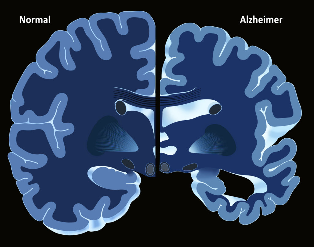 Die Illustration der Silhouette eines menschlichen Kopfs. Wir sehen eine hellblaue Illustration des Gehirns, mit hellblau erleuchtetem Nervensystem und zahlreichen glühenden Synapsen.