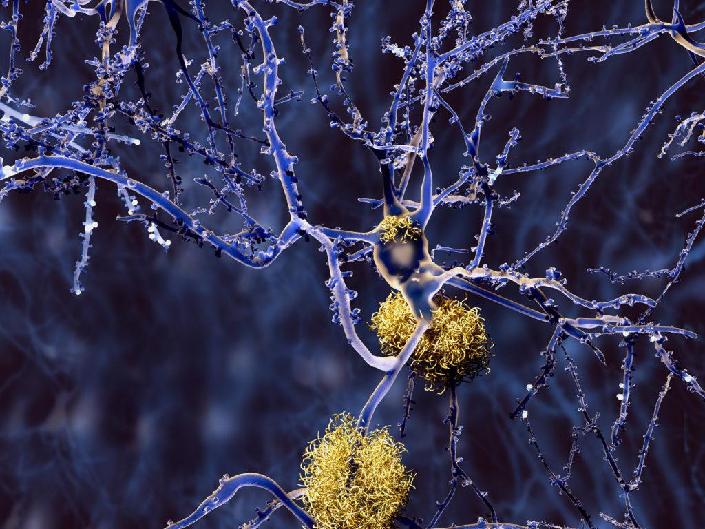 Graphique scientifique de neurones couverts de plaques amyloïdes, conséquence de la maladie d'Alzheimer. Les neurones sont mauves, filiformes et arborescents. Les plaques sont orange pâle, denses et ressemblent à un nid épais.