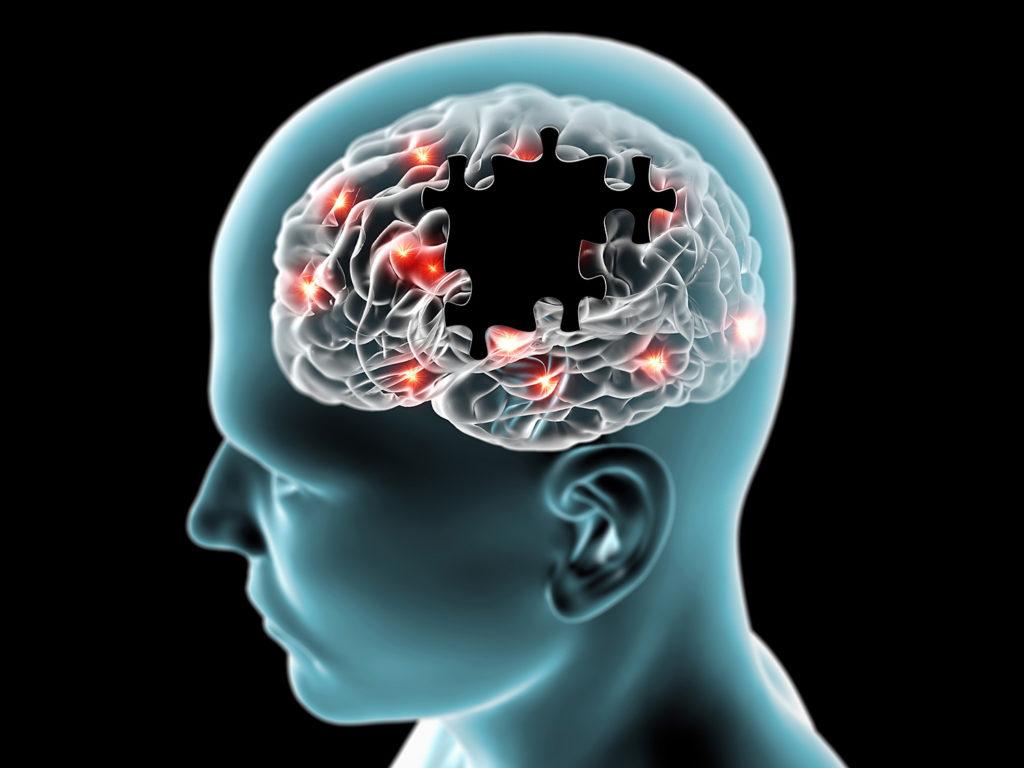 Die Erhaltung eines gesunden Hirngewebes während der gesamten Lebensdauer kann Alzheimer verhindern