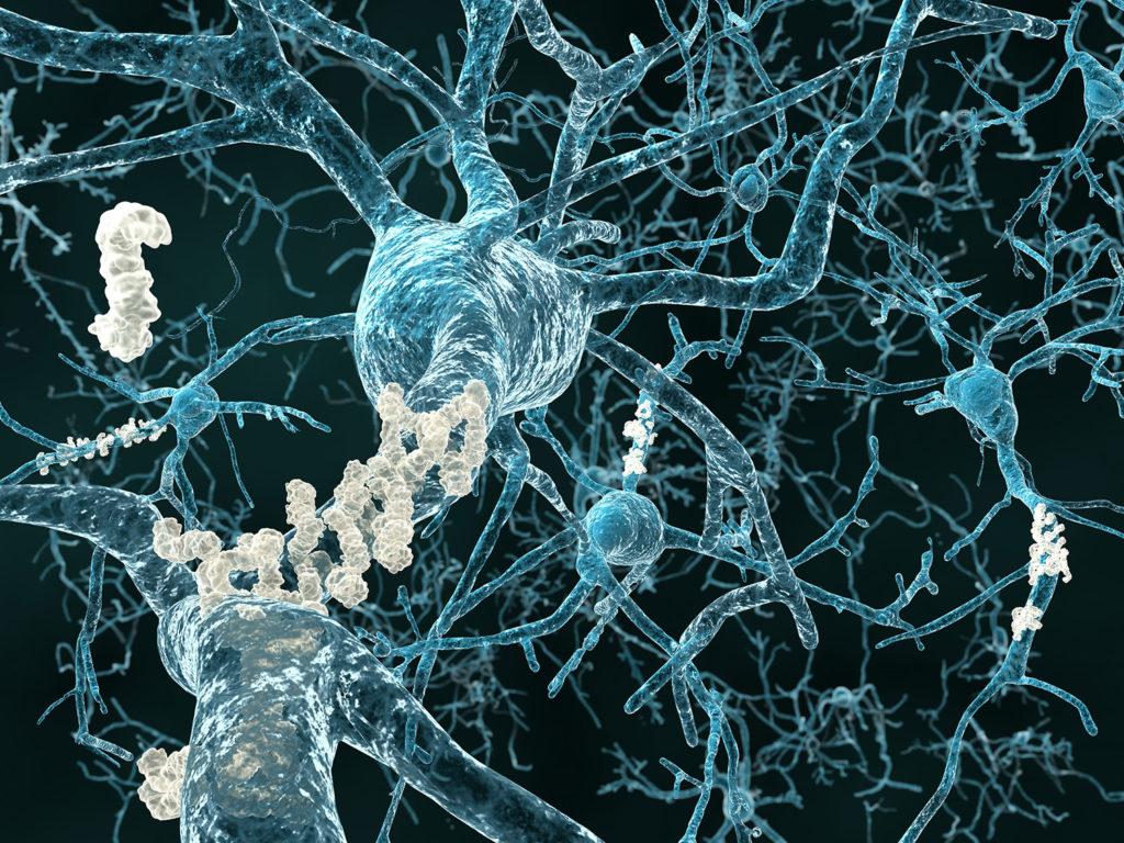 Die Neuronen des Hippocampus sind bei Alzheimer schwer geschädigt und CBD könnte diesen Effekt umkehren