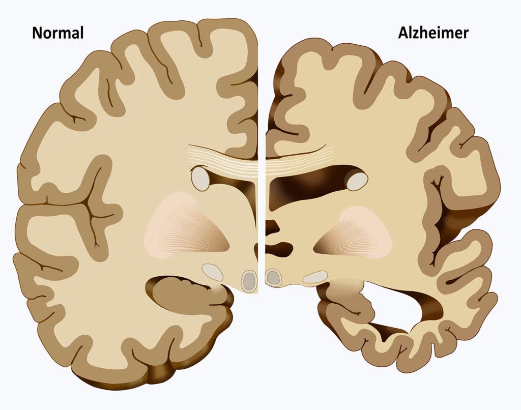 Alzheimer verursacht eine starke Schrumpfung des Hippocampus und des Zerebralkortex