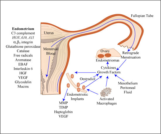 Modelo de desarrollo de la endometriosis (©Mitopencourseware)