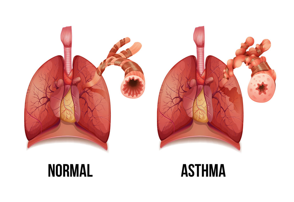 A digital illustration showing the difference between normal lungs, and asthmatic lungs. The asthmatic lungs highlight a narrow thickened airway wall.