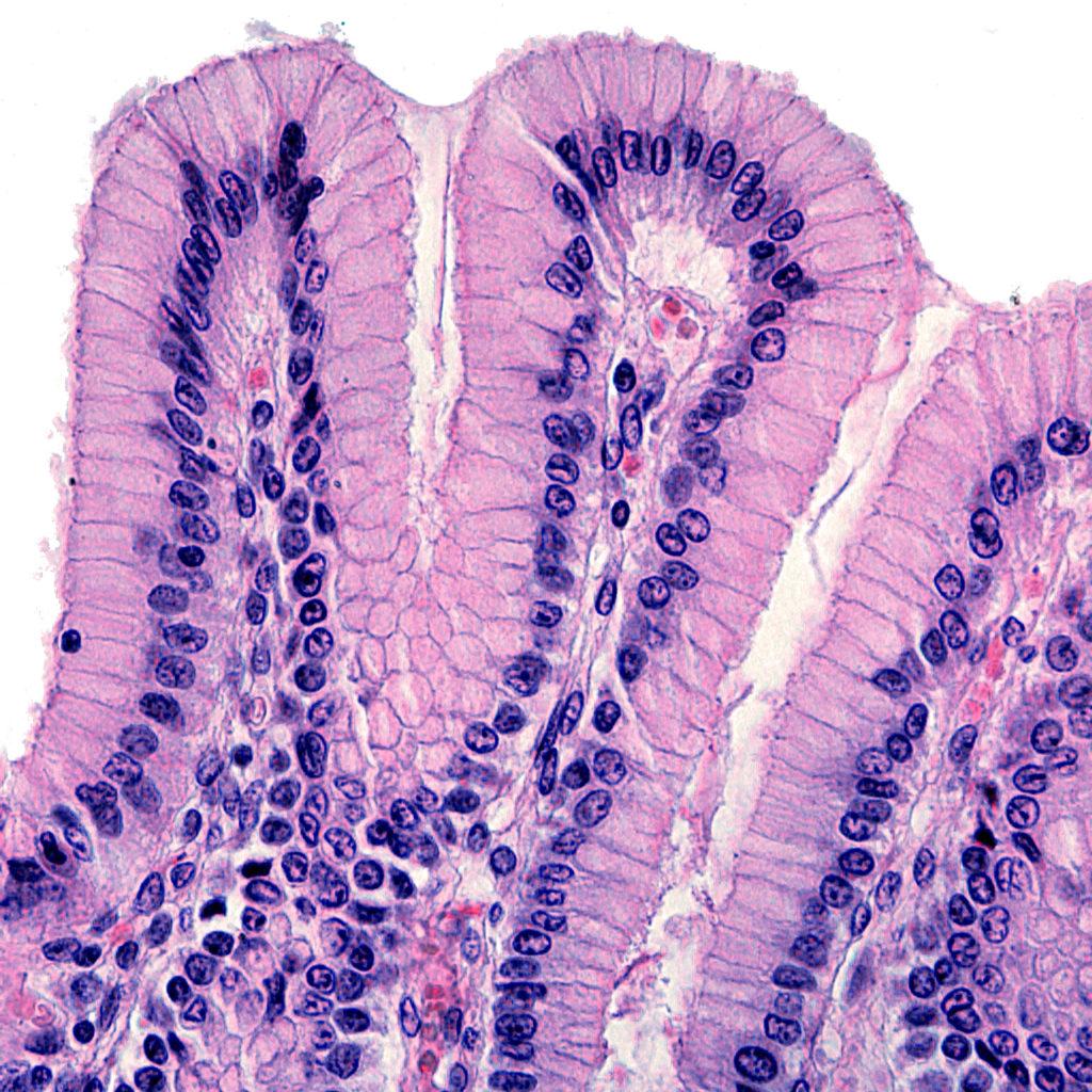 Cannabinoide fördern auch die Wundheilung im Epithel, das die inneren Organe bedeckt