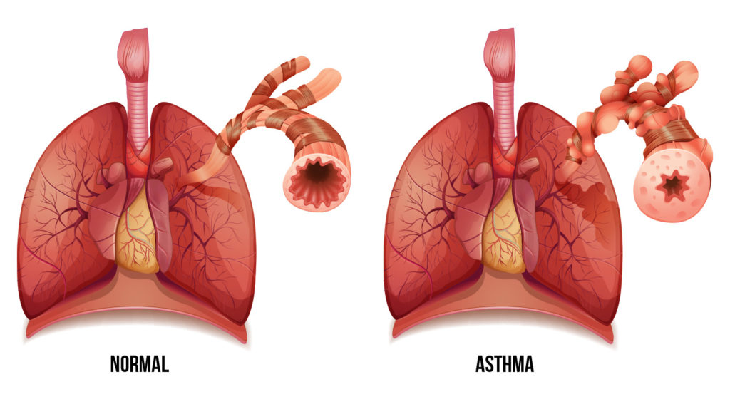 During an asthma attack, the bronchi of the lungs constrict and airflow is blocked