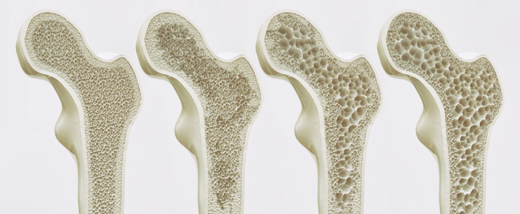 In osteoporosis, overactivity of CB-receptors in the osteoclasts leads to excessive bone resorption