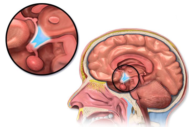 Der Hypothalamus ist für die Erzeugung der Hungergefühle verantwortlich