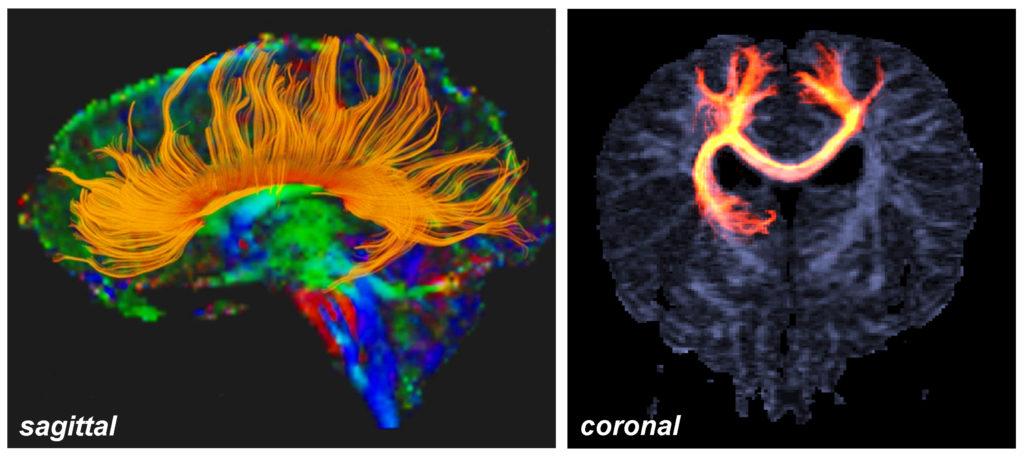 El cuerpo calloso, la región más grande de la sustancia blanca del cerebro, representada en imágenes ITD (© Andras Jakab)