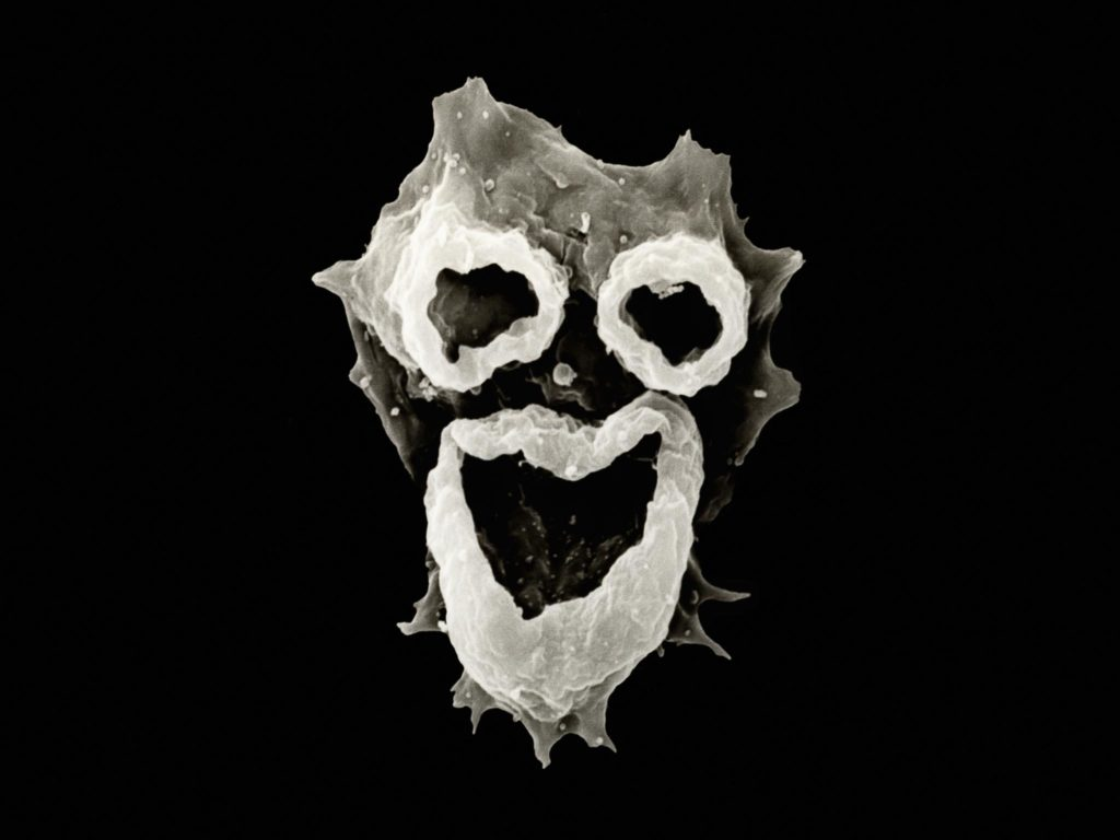 "Hiiii! I'm coming to eat your brain! N. fowleri ""brain-eating"" amoeba"