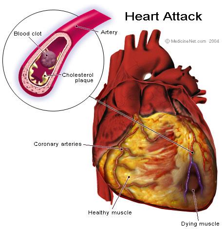 CBD helpt mogelijk ook beschermen tegen coronaire hartziekten en verschillende andere hart- en vaatziekten (© gandhiji40)