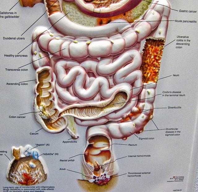 CBD helpt mogelijk bij de behandeling van verschillende aandoeningen aan het maag-darmkanaal, zoals de ziekte van Crohn, colitis en andere vormen van inflammatoire darmziekten (© ex_magician)