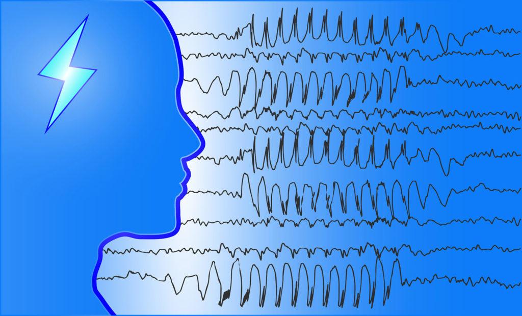 Wirkung von Cannabis auf Epilepsie