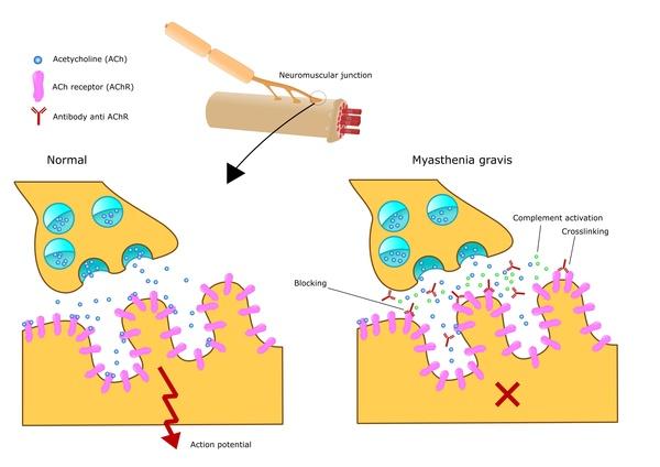 Myasthenia gravis tast het presynaptische zenuwuiteinde aan (© US National Institute of Health)