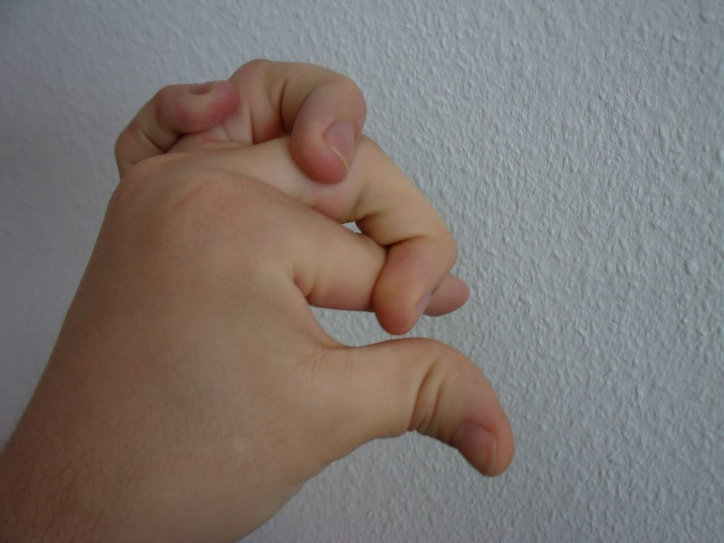 Ehlers-Danlos syndrome causes hypermobility of the joints (© Wikipedia.org)