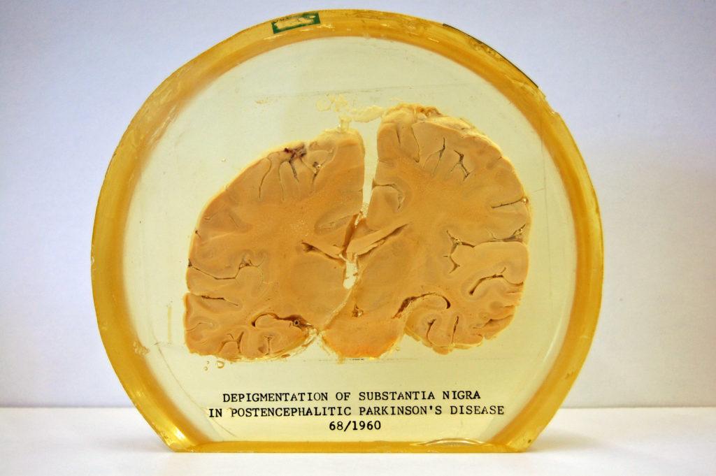 Foto de una porción de una parte del cerebro conservada en una sustancia transparente, etiquetada como 'Despigmentación de la sustancia negra en la enfermedad de Parkinson postencefalítica 68/1960'.