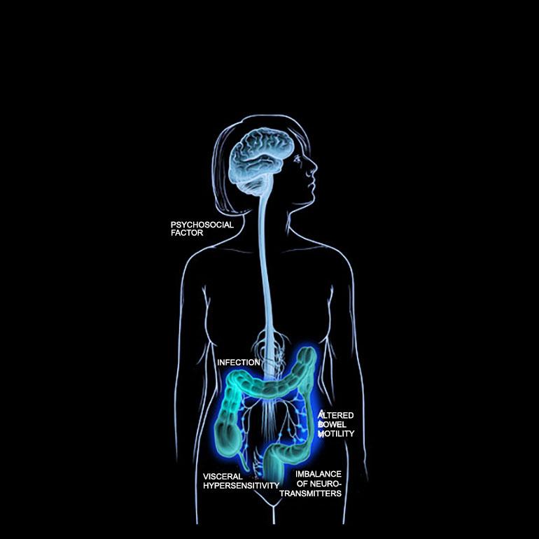 Qu'est-ce que la déficience endocannabinoïde clinique ?
