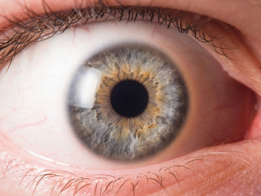 Nahaufnahme eines weit aufgesperrten Auges mit einer grün-blau-gelblichen Iris.