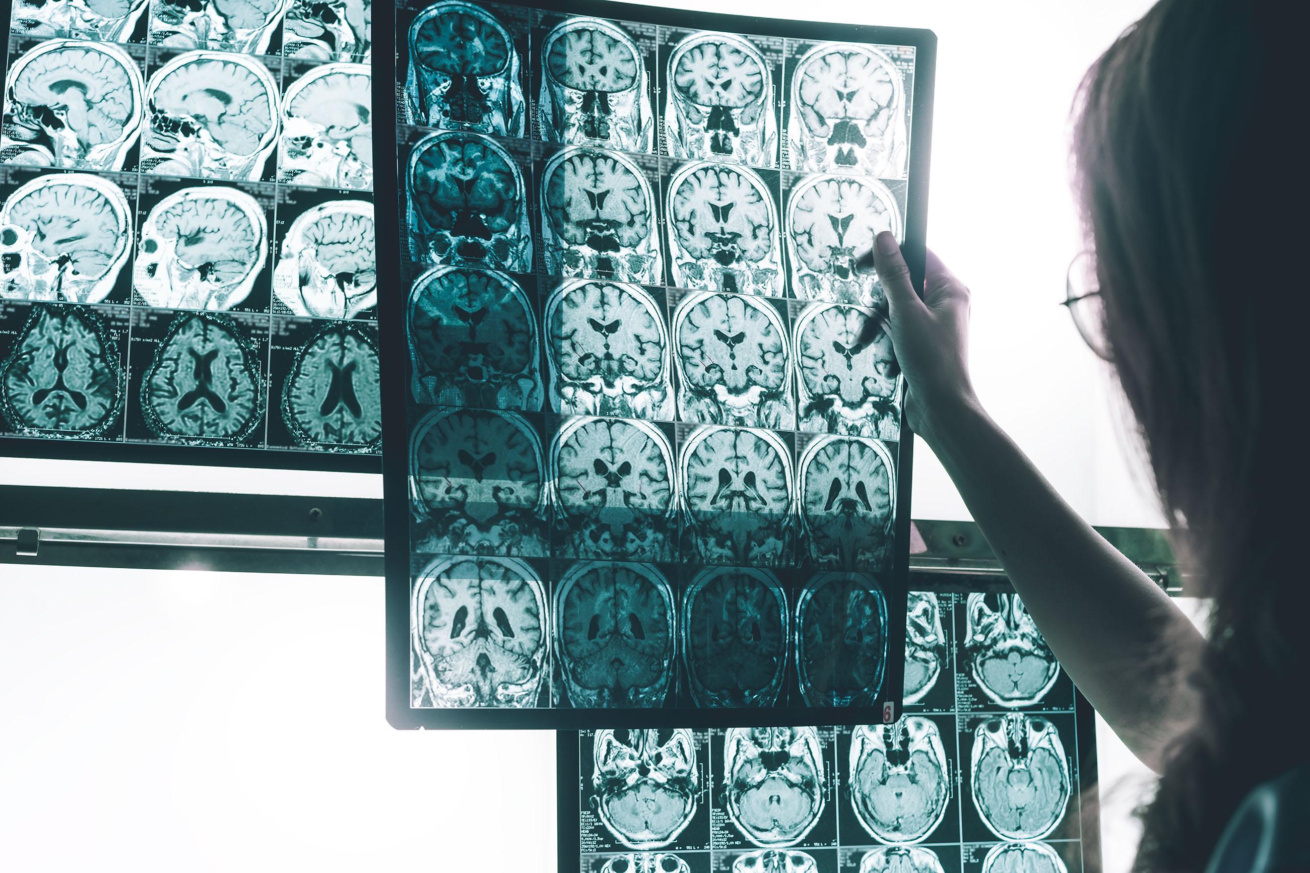 A la derecha de la imagen vemos a una doctora. Sujeta una ecografía que muestra el corte transversal de un cerebro.