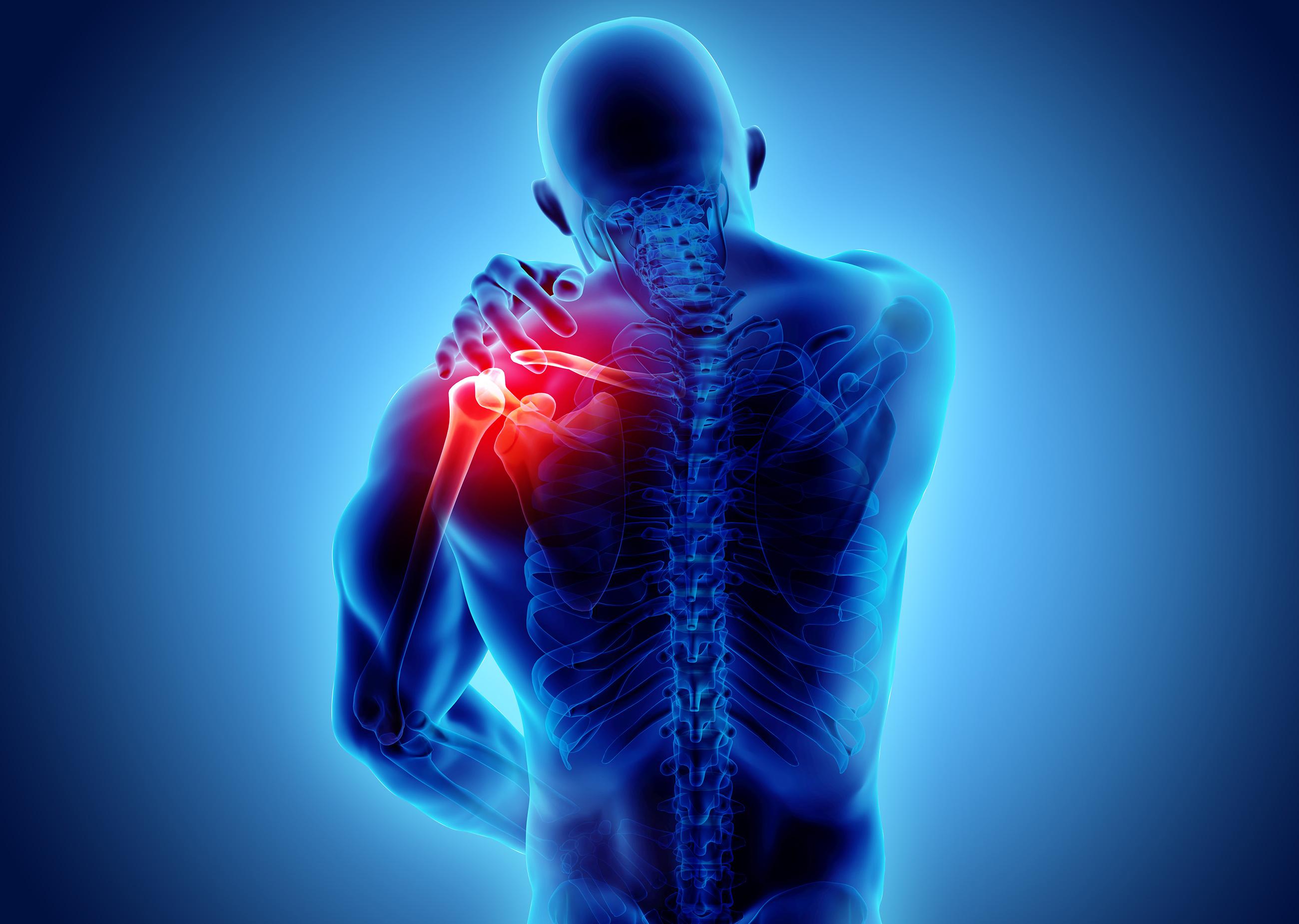 Imagen gráfica de un hombre en la que se muestran la parte superior del cuerpo y la cabeza desde atrás. Se ven con claridad los músculos de la zona del hombro, en color rojo. El hombre se toca el hombro con la mano izquierda.