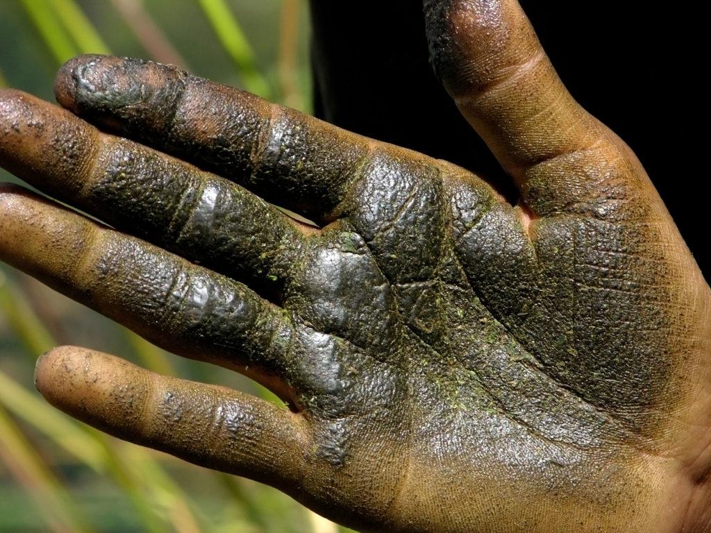 Nahaufnahme einer Hand. Die Haut ist kaum zu erkennen, weil sie getränkt ist in einer öligen, dunkelgrünen Schicht. Es handelt sich um die Reste von Haschisch, die bei der traditionellen Herstellung von Charas an der Hand kleben bleiben.