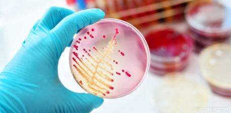 Close-up van een laboratorium in werking, waarop een hand met een blauwe handschoen aan te zien is, die een doorzichtig, glazen schaaltje voor de camera omhoog houdt. In het schaaltje is een rood-oranje structuur te zien. Op de achtergrond staan meer laboratoriumbenodigdheden.