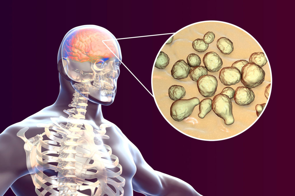 Een computertekening met aan de linkerkant een röntgenfoto van een mens. Aan de rechterkant staat een uitvergrote afbeelding van zijn hersenen met enkele bolvormige structuren.