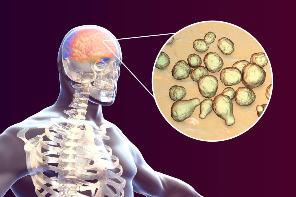 Sur la gauche, un infographique montre la radiographie d'un être humain. Sur la droite, il y a une vue agrandie de son cerveau, avec des structures sphériques.
