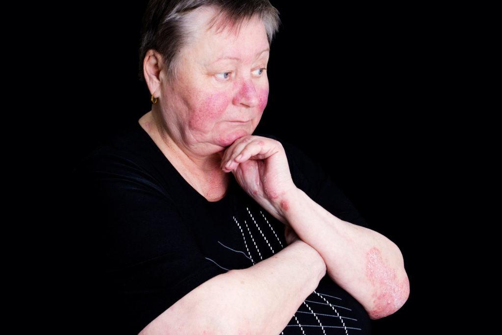 Foto einer nachdenklich dreinblickenden Frau, deren Gesicht, Hände und Arme von Rosazea befallen sind. Die Hautkrankheit macht sich in Form von roten Flecken bemerkbar. Der Hintergrund ist komplett schwarz.