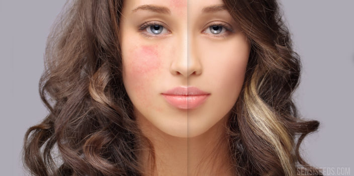 A portrait photo of a young woman with rosacea on the right side of her face. This skin condition manifests itself in the form of red blotches.
