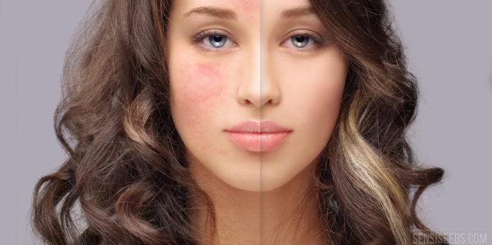 Portrait d'une jeune femme coupé en deux au milieu, avec, sur la photo de gauche, son visage atteint de rosacée. L'affection cutanée se manifeste par des rougeurs.