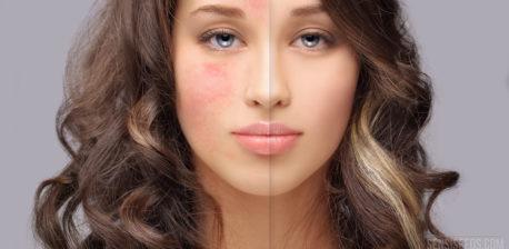 Porträtfoto einer jungen Frau, deren rechte Gesichtshälfte von Rosazea befallen ist. Die Hautkrankheit macht sich in Form von roten Flecken bemerkbar.