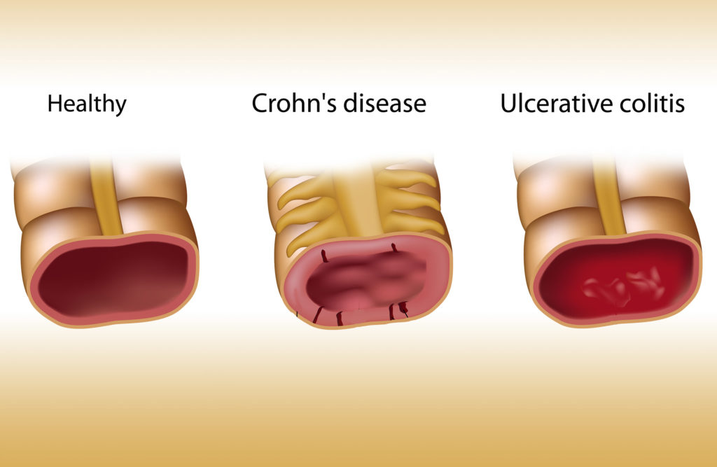 An illustration of healthy gut, gut with Crohn's disease and Ulcerative colitis