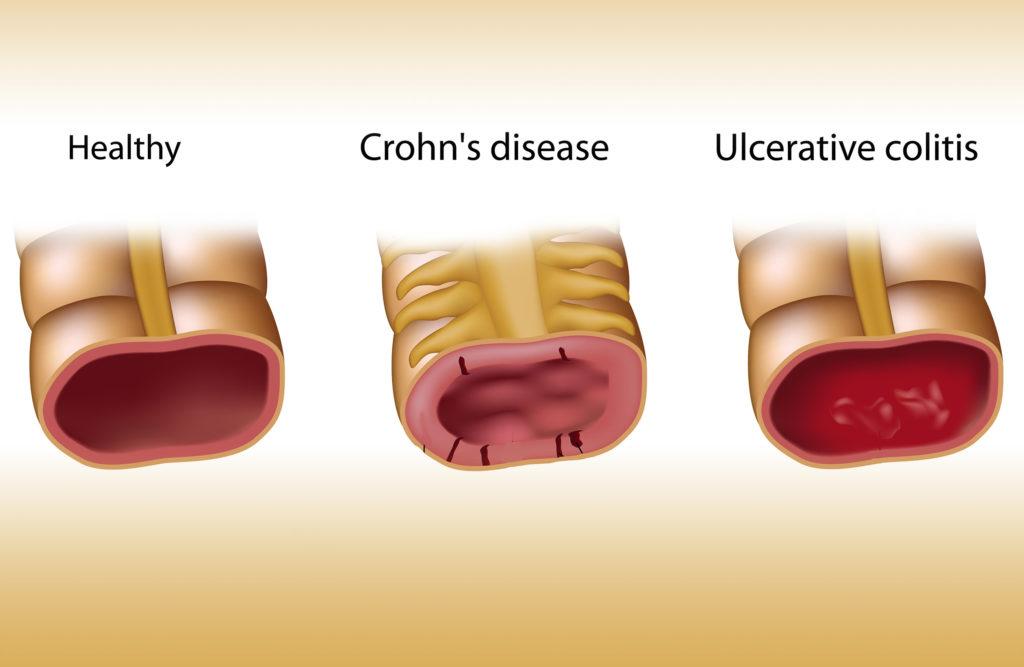 Eine Illustration von gesunden Darm, Darm mit Crohn-Krankheit und Colitis ulcerosa