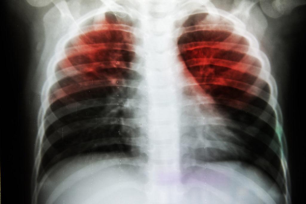 Ein Röntgenstrahl eines Paares von Lungen mit zwei in rot markierten Gebieten