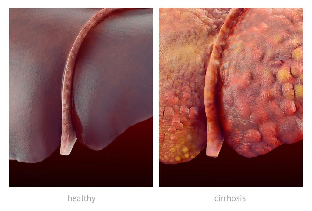 Un foie en bonne santé et un foie affecté par la cirrhose