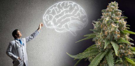 Un médico apuntando a un dibujo de un cerebro y una planta de cannabis.
