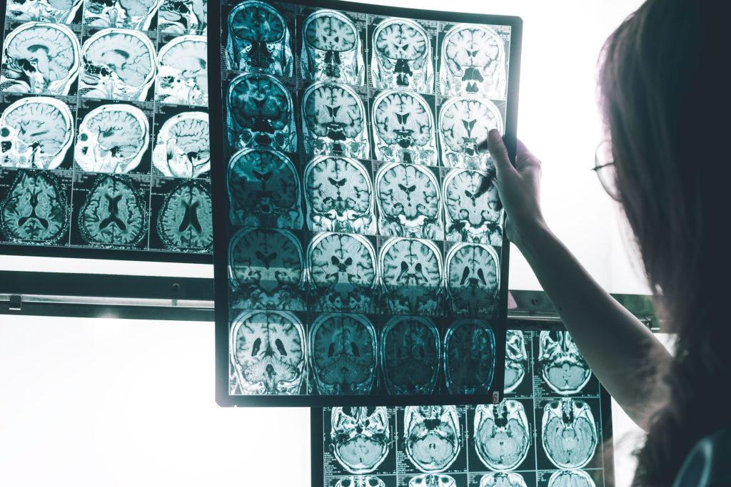 Das Profil einer Frau mit einer Frau, die eine Röntgenaufnahme von mehreren Hirn-Scans hält