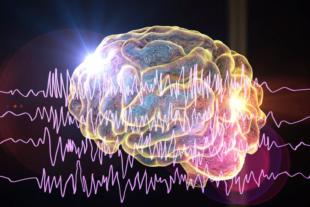 Ein Gehirn, der in Gelb gegen einen schwarzen Hintergrund mit neonrosa Linien eines Monitors hervorgehoben wurde