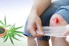 Une personne avec genou blessé, feuilles de cannabis et un topique de cannabis