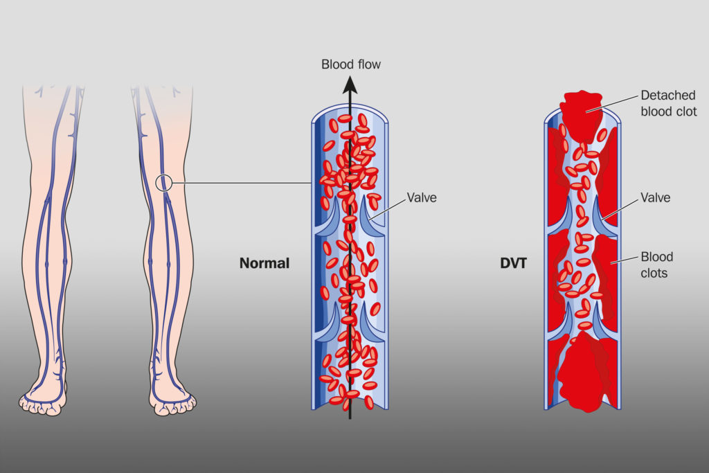 A normal blood vessel and a blood vessel with thrombosis